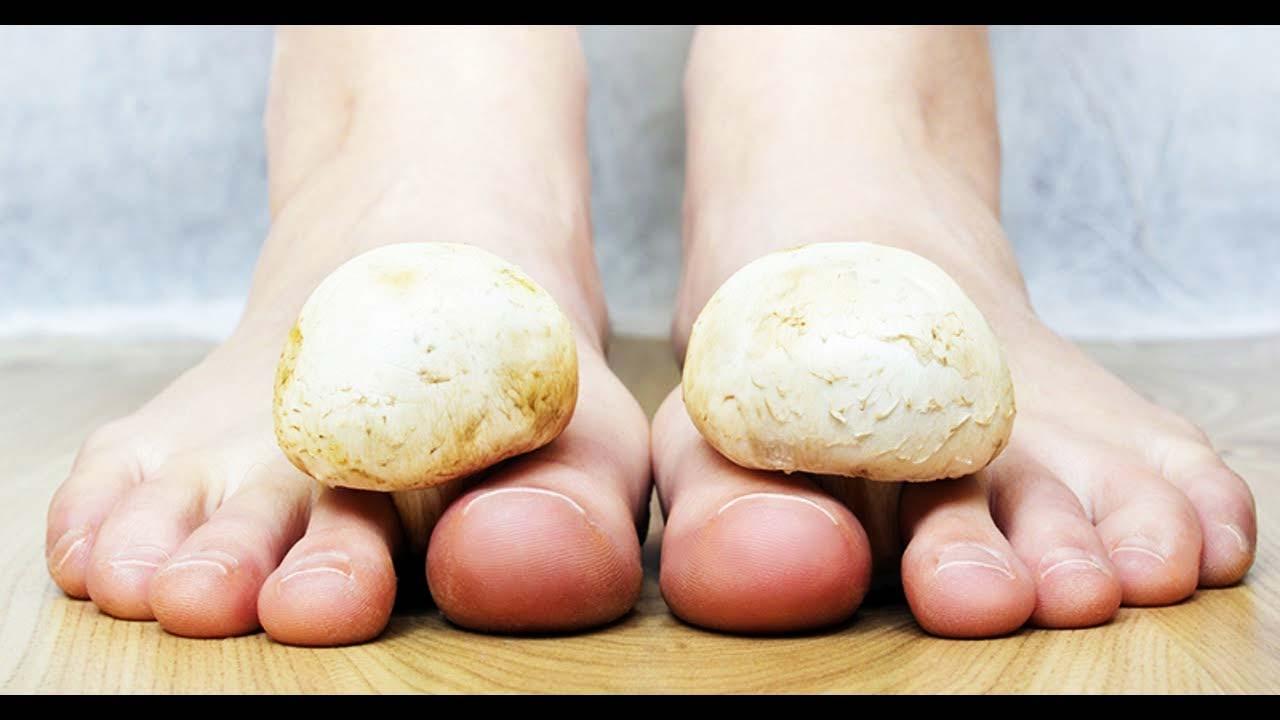 champignon ongle pied