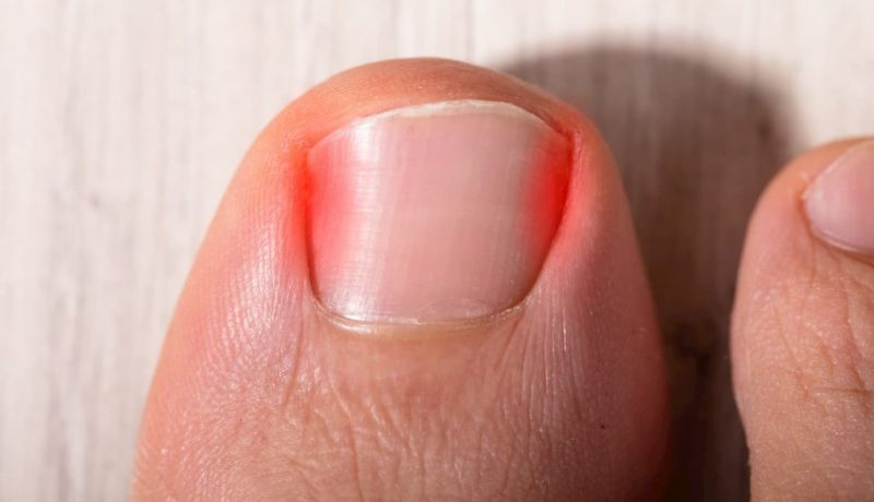 soigner ongle incarné