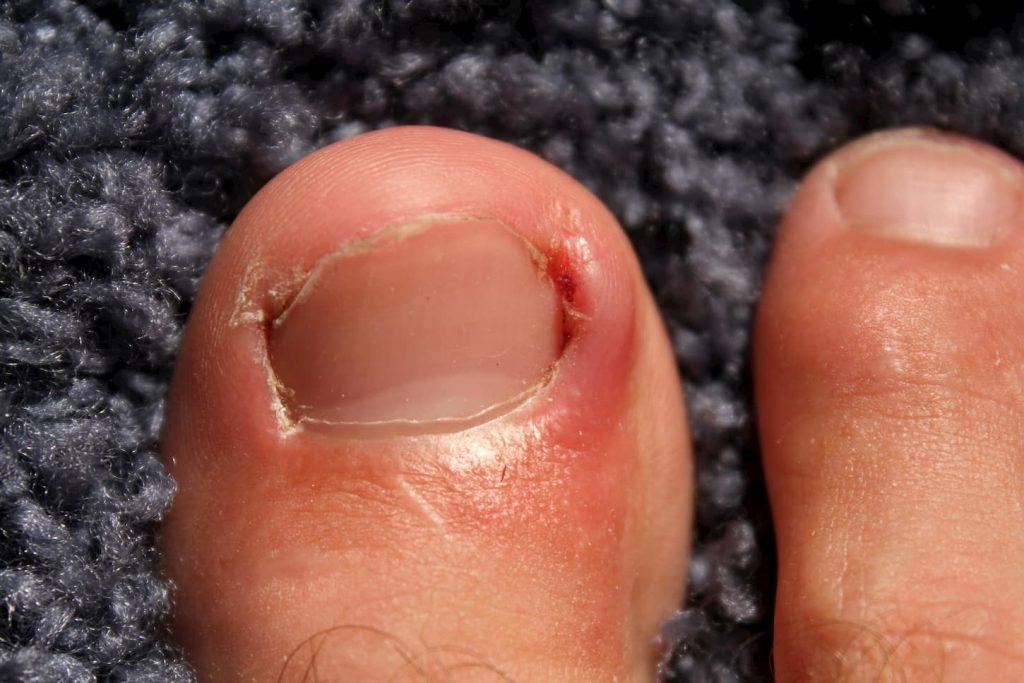 soigner un ongle incarné