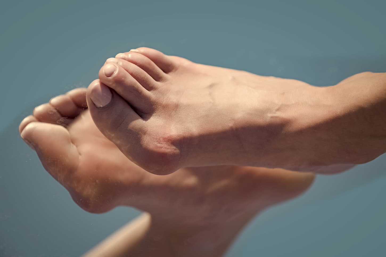 déformations pieds